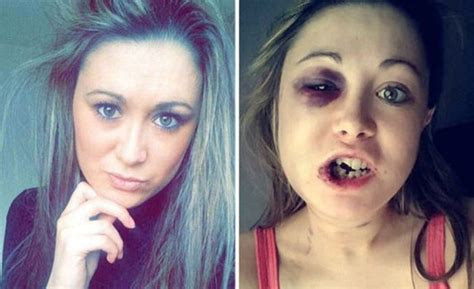 Girl says she was brutally beaten by her boyfriend after