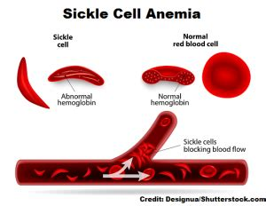 Sickle Cell Anemia NCLEX Questions
